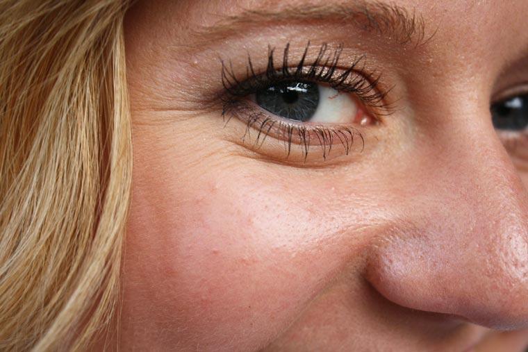 Faltenbehandlung im Gesicht